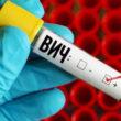 ВИЧ-инфекция: ученые обнаружили новый штамм  впервые за 20 лет